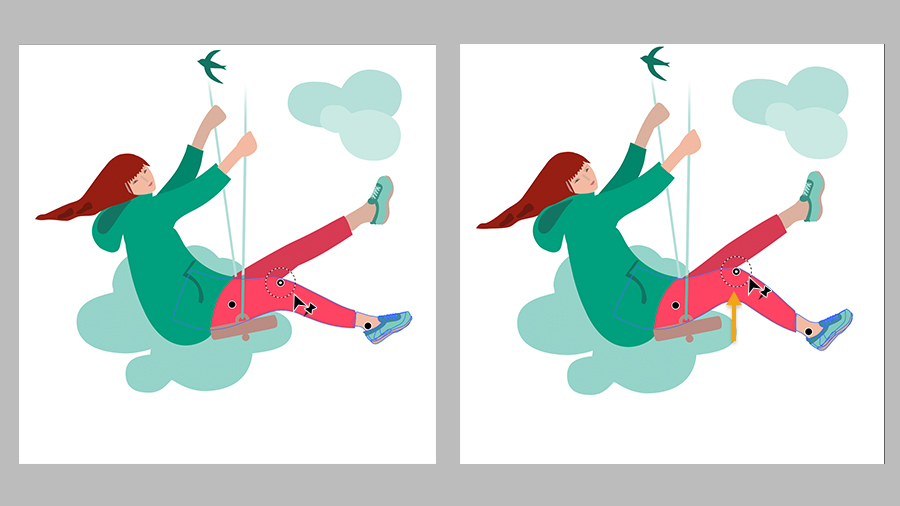 Side by side images of girl on swing with placement of pins on hip, knee, and ankle