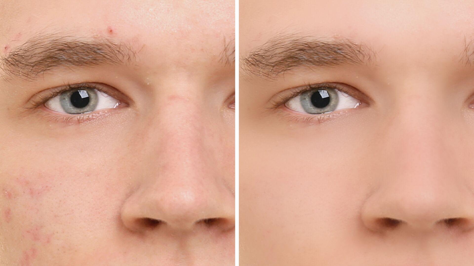 Сглаживание кожи на фотографиях